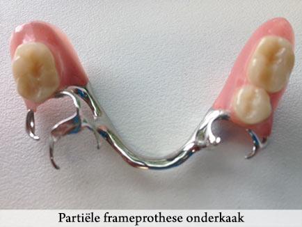 frameprothese onderkaak